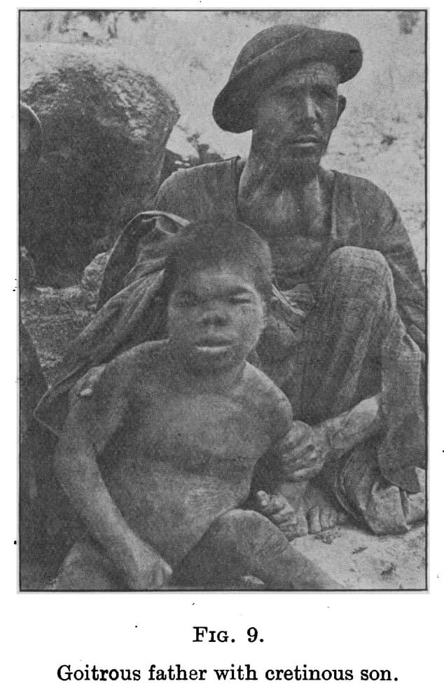 Hunza - Père affecté d'un goitre et son fils de crétinisme